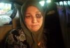 11 غرزة في الرأس.. ضحية الجزار المصري تروي التفاصيل