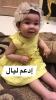 وفاة طفلة مصابة بضمور العضلات حصلت على حقنة بـ35 مليون جنيه في مصر