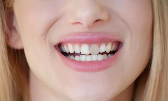 ما أسباب ظهور البقع على الأسنان