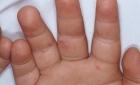 متخصصون أعراض متلازمة اليد والفم والقدم متفاوتة في شدتها لكنها غير مقلقة